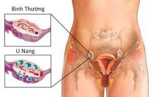 Bệnh u nang buồng trứng là bệnh phụ khoa thường gặp