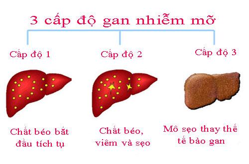 chua-benh-gan-nhiem-mo-bang-phuong-phap-hien-dai