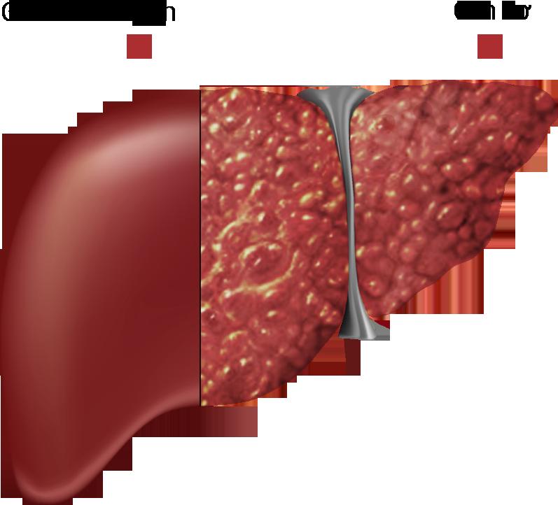 Những biểu hiện của viêm gan và cách điều trị xơ gan