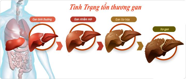dau-hieu-bao-dong-xo-gan-co-truong-1