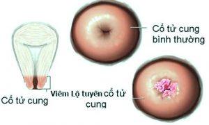 biểu hiện bệnh viêm lộ tuyến cổ tử cung