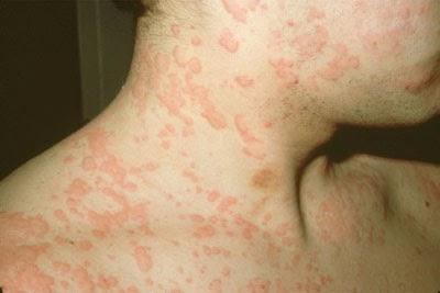 5 căn bệnh ngoài da thường gặp và cách điều trị
