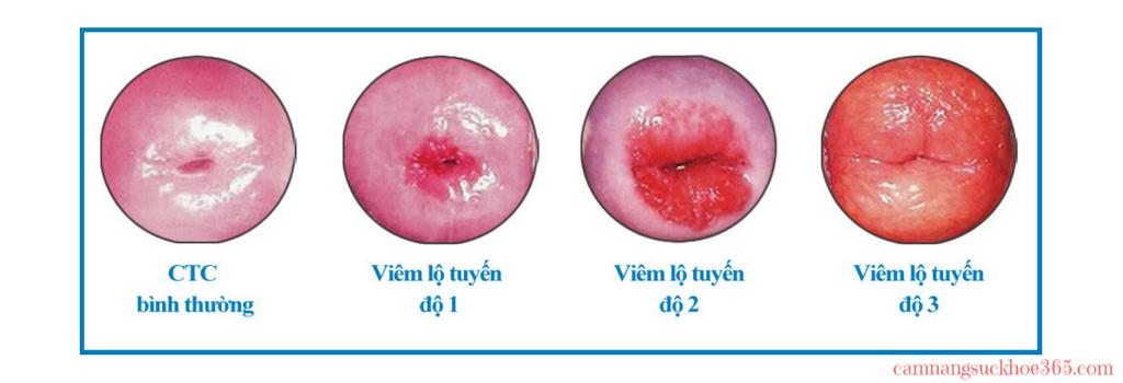 các cấp độ viêm lộ tuyến cổ tử cung