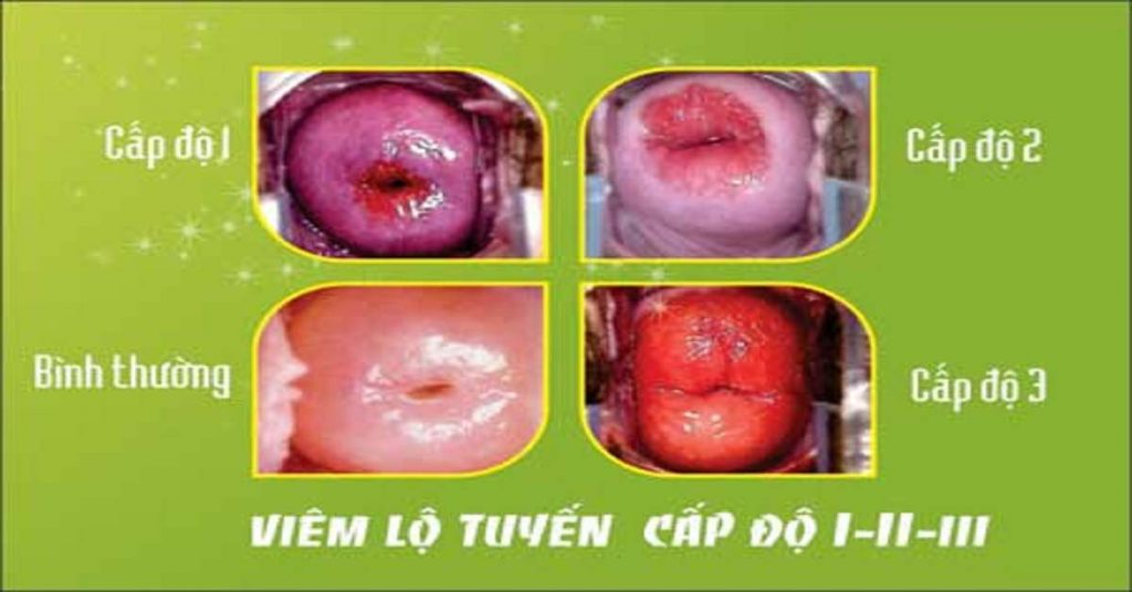 Chữa viêm lộ tuyến cổ tử cung