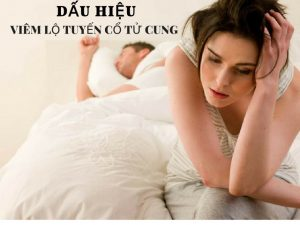 Dấu hiệu viêm lộ tuyến cổ tử cung