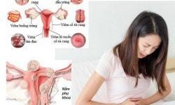 9 cách chữa bệnh nấm phụ khoa