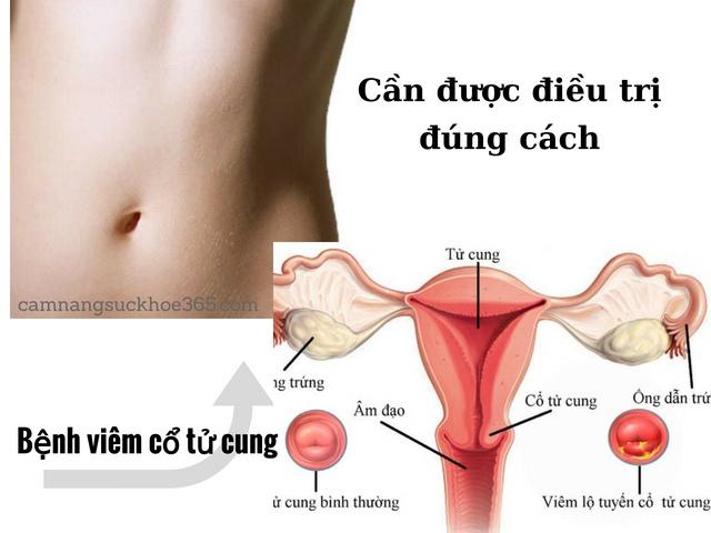 Cách điều trị viêm cổ tử cung