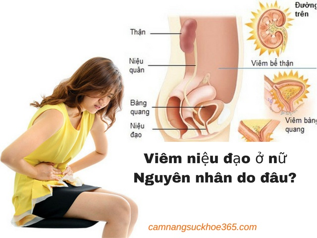 Nguyên nhân gây viêm niệu đạo ở nữ giới