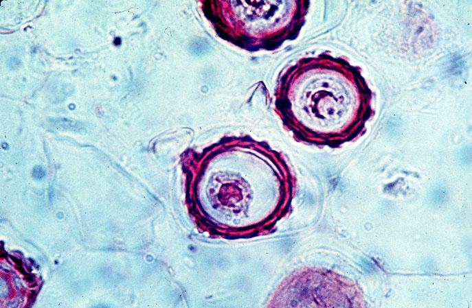 Phác đồ trị viêm âm đạo do nấm candida hiệu quả