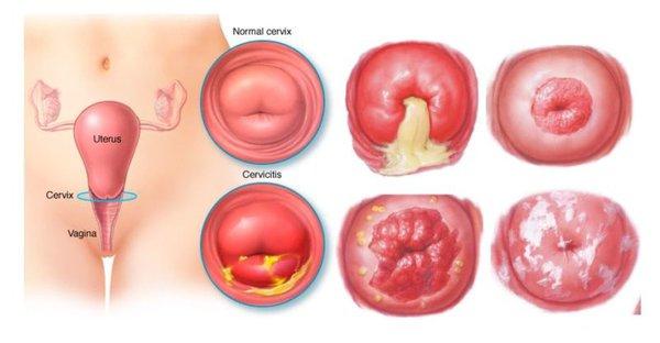 Viêm lộ tuyến cổ tử cung khi mang thai có nguy hiểm