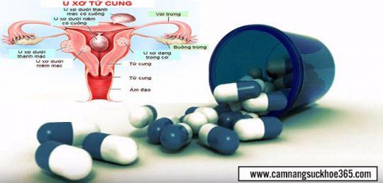 Bị u xơ tử cung nên uống thuốc gì cho nhanh khỏi?
