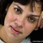 Chia sẻ cách chữa lang ben trên mặt nhanh khỏi