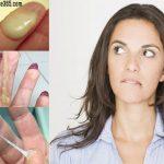 Ra nhiều huyết trắng là dấu hiệu của bệnh lý