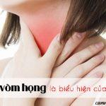 Thường xuyên bị ngứa vòm họng là bệnh gì? Điều trị như thế nào?