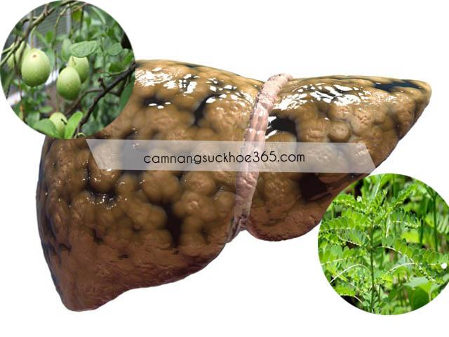 Tự chữa bệnh gan nhiễm mỡ bằng thuốc nam