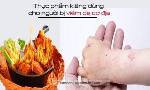 Thực phẩm kiêng dùng cho người bị viêm da cơ địa