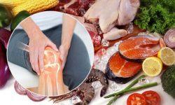Thoái hóa khớp gối nên ăn gì? là băn khoăn của nhiều người bệnh